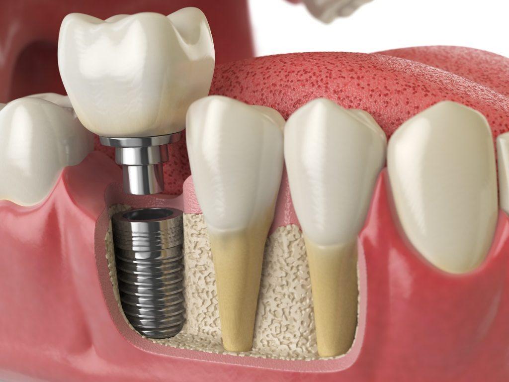 Implante dentário em Campinas: o que é e quais os benefícios