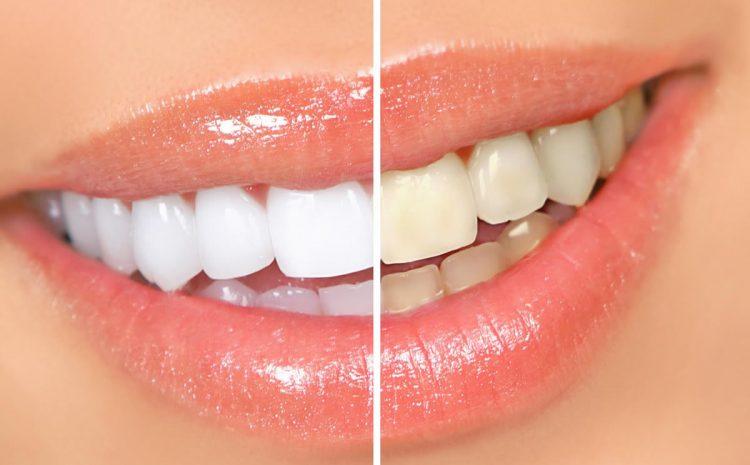 Tudo o que você precisa saber sobre clareamento dental Campinas
